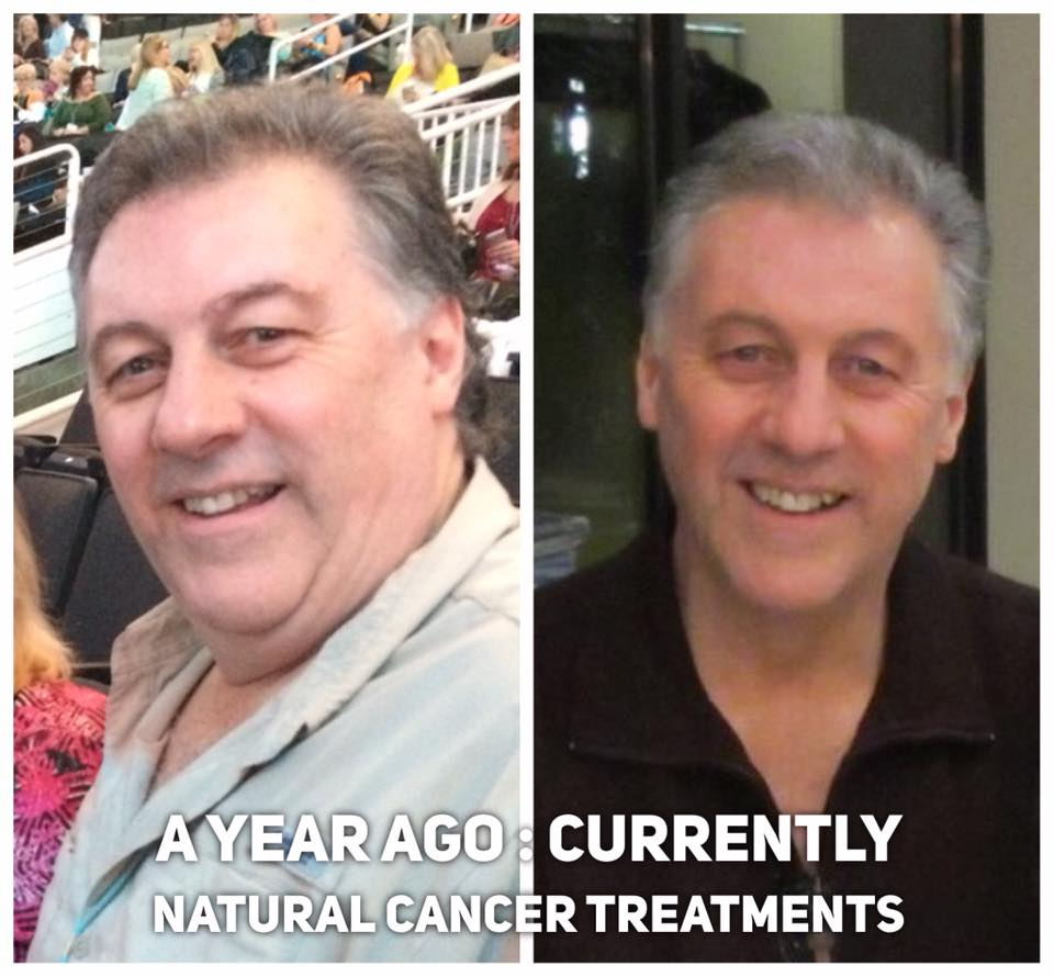 Brent Wallace: Before & after Cancer: